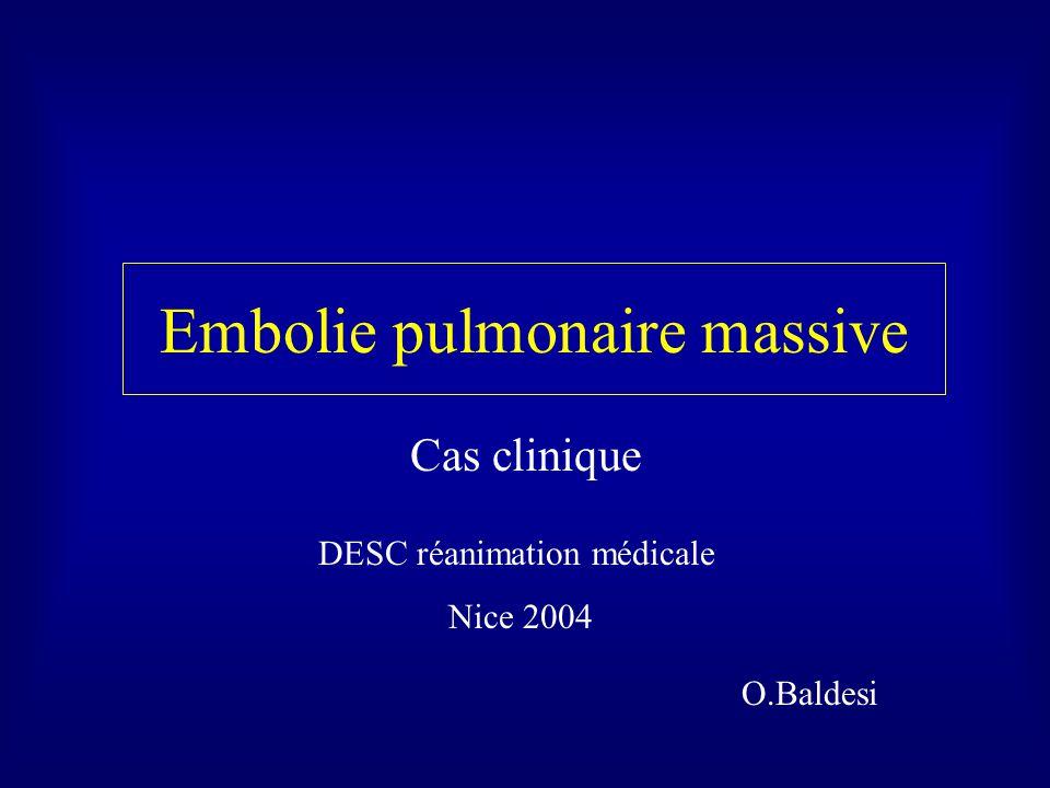 Embolie pulmonaire massive