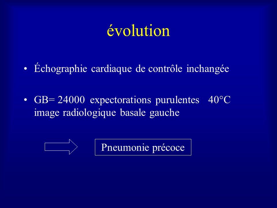 évolution Échographie cardiaque de contrôle inchangée