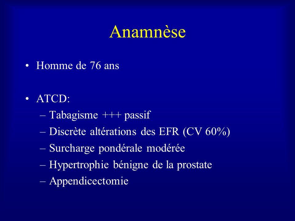 Anamnèse Homme de 76 ans ATCD: Tabagisme +++ passif