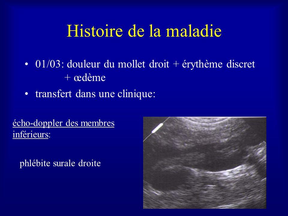 Histoire de la maladie 01/03: douleur du mollet droit + érythème discret + œdème. transfert dans une clinique: