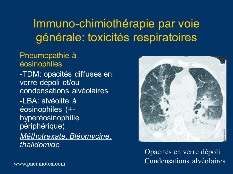 Immuno-chimiothérapie par voie générale: toxicités respiratoires