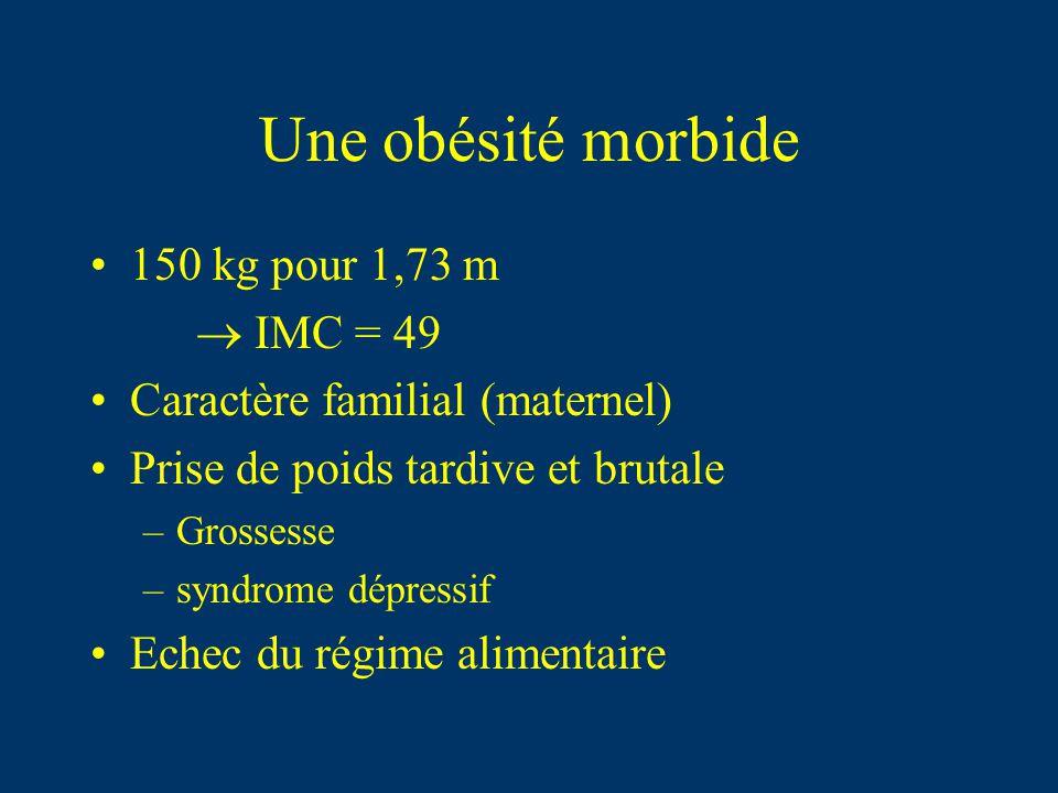 Une obésité morbide 150 kg pour 1,73 m  IMC = 49