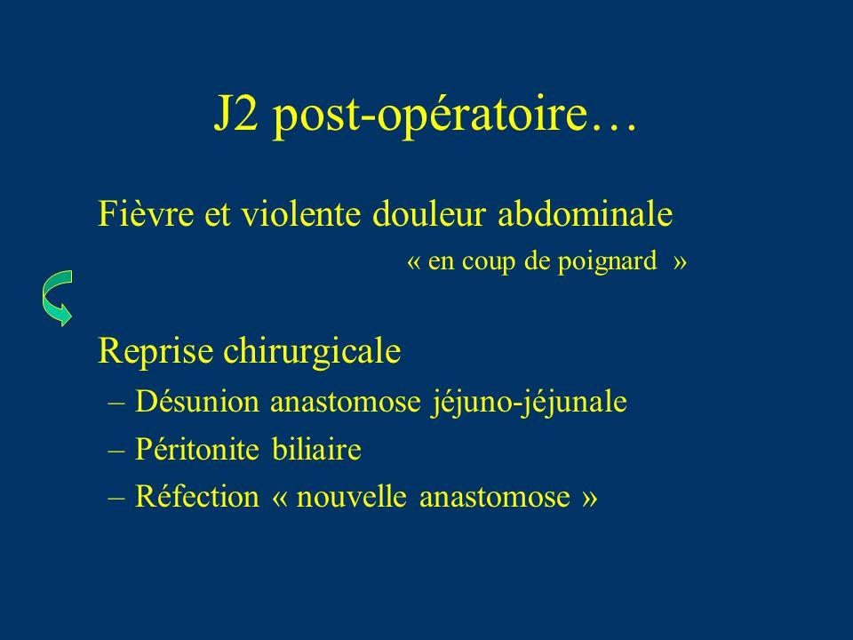 J2 post-opératoire… Fièvre et violente douleur abdominale