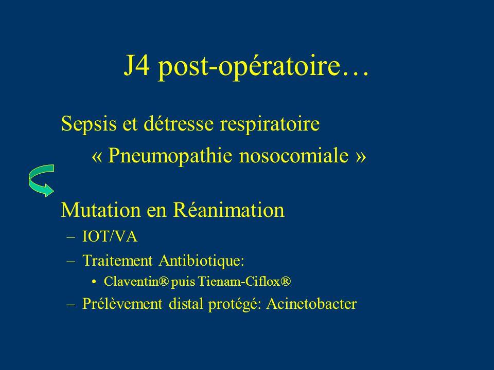 J4 post-opératoire… Sepsis et détresse respiratoire