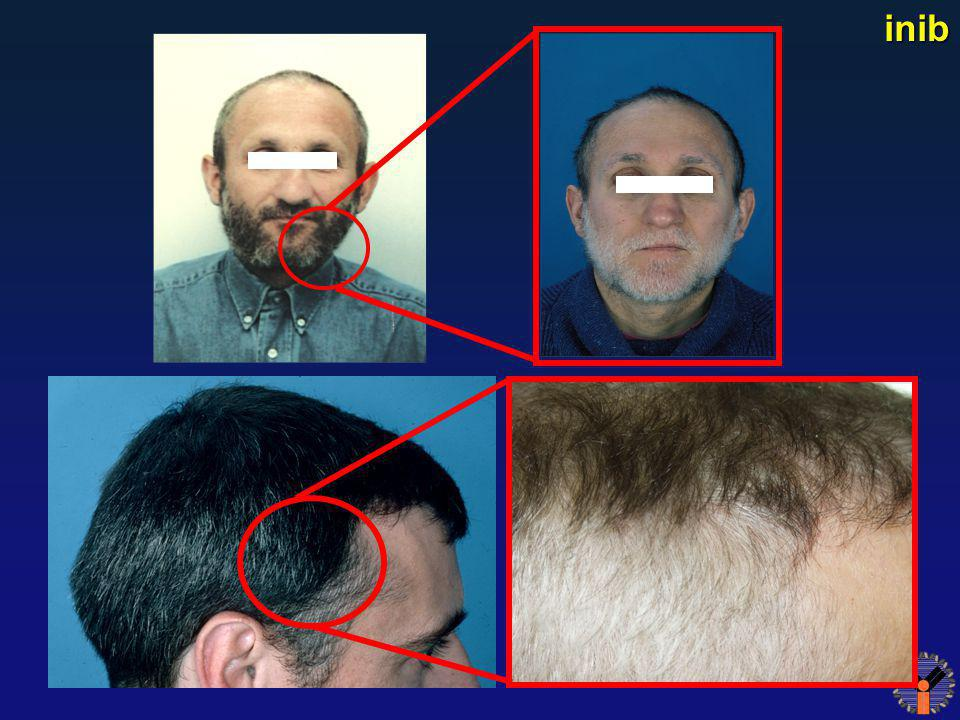 Reversible Hair Depigmentation