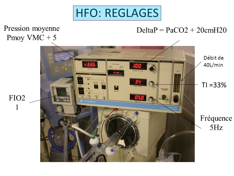 HFO: REGLAGES Pression moyenne DeltaP = PaCO2 + 20cmH20 Pmoy VMC + 5