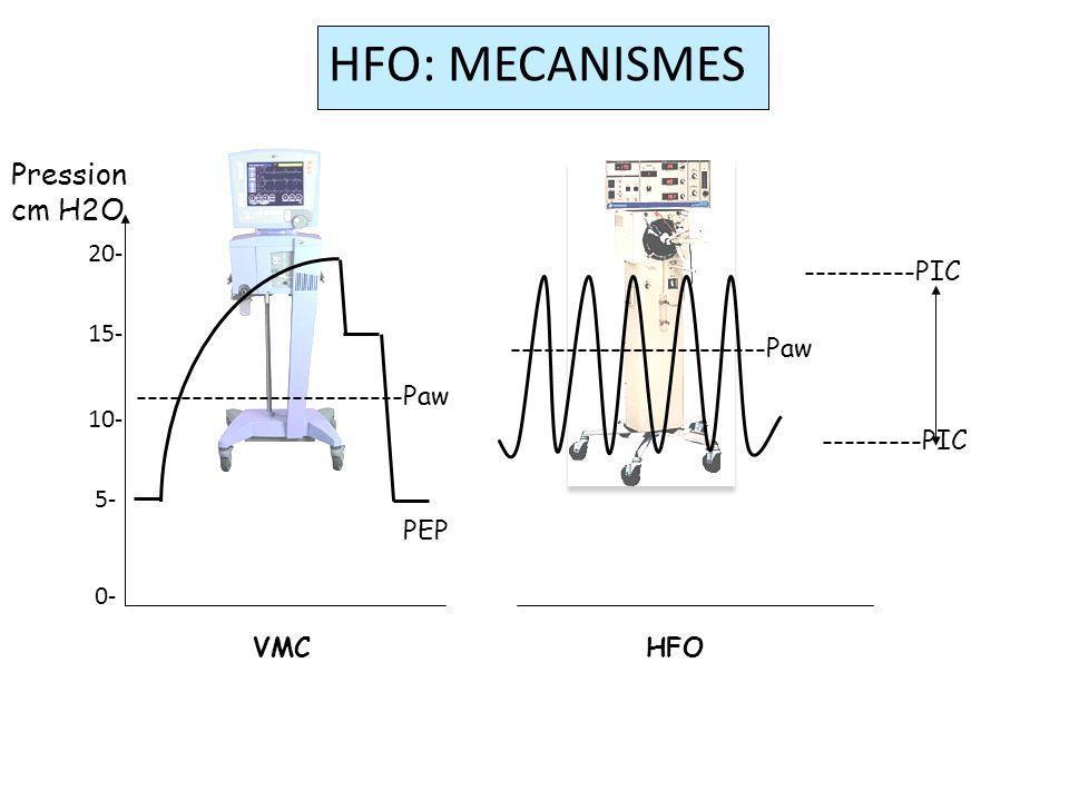HFO: MECANISMES Pression cm H2O 20- 15- 10- 5- 0- ----------PIC