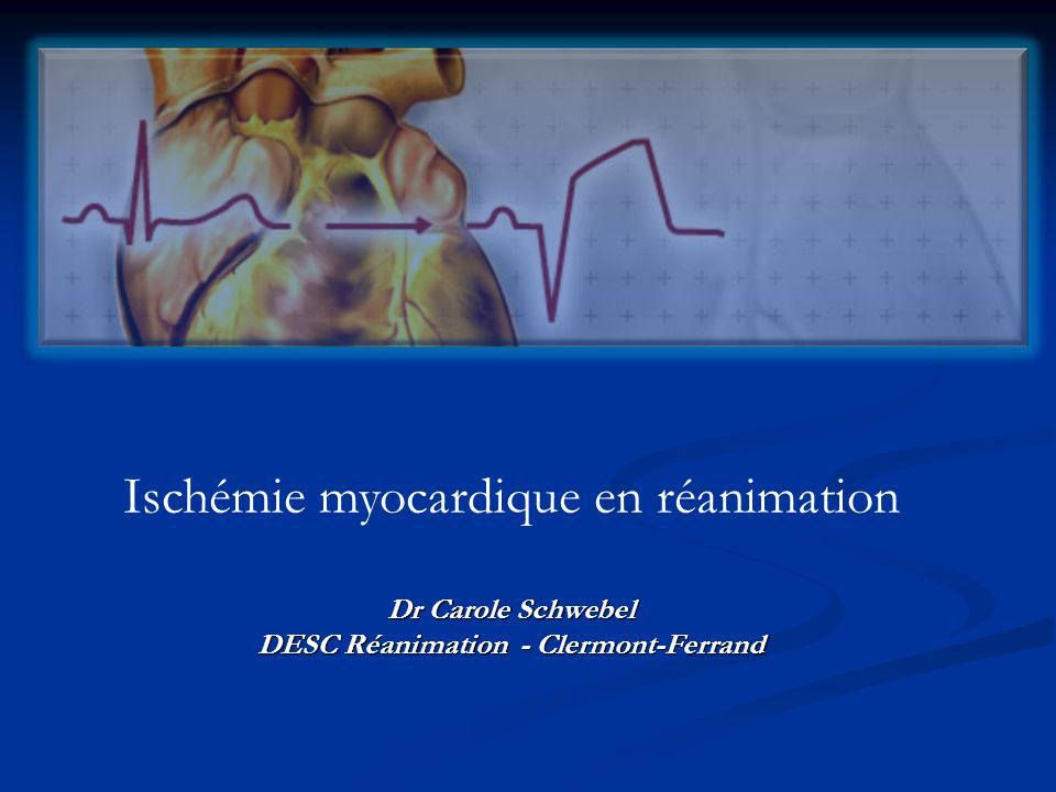 DESC Réanimation - Clermont-Ferrand