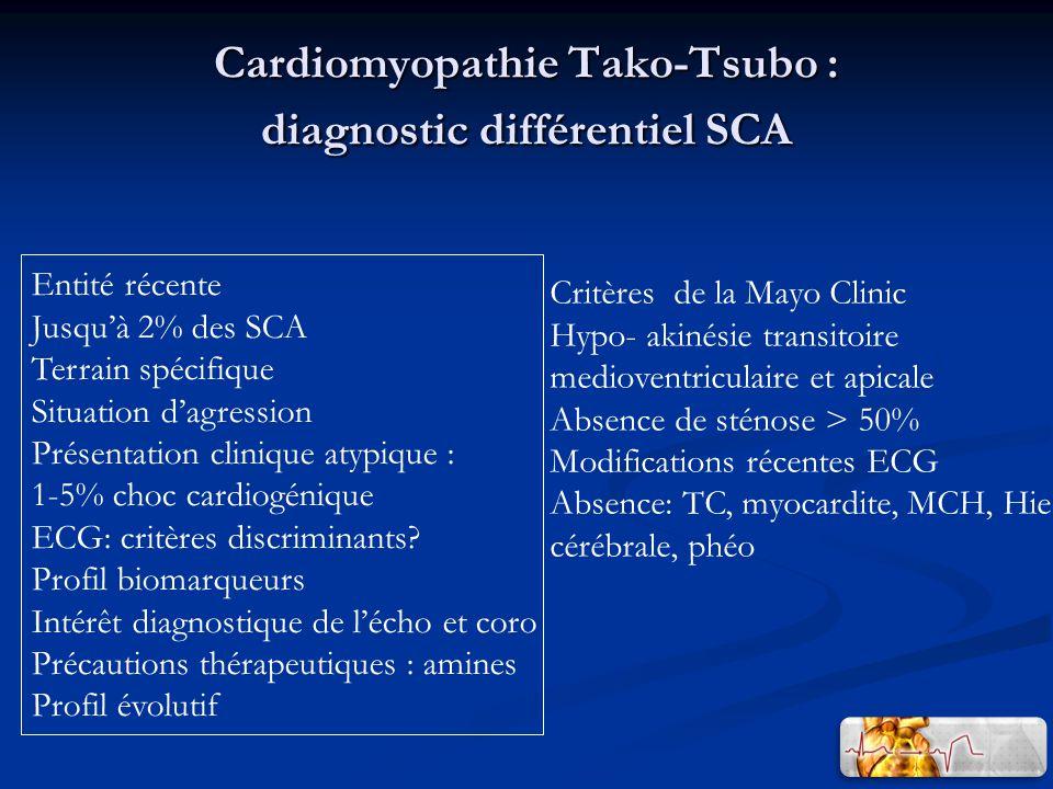 Cardiomyopathie Tako-Tsubo : diagnostic différentiel SCA