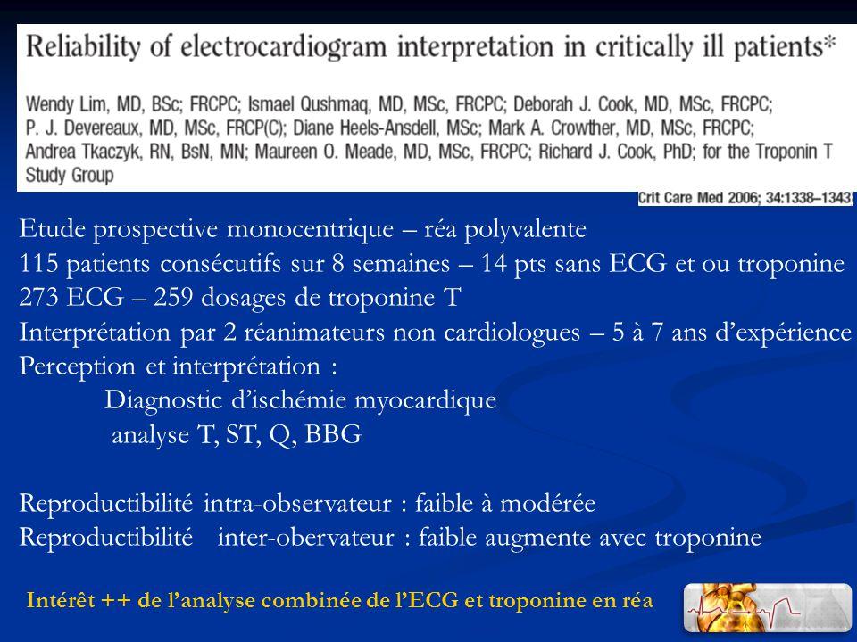 Intérêt ++ de l'analyse combinée de l'ECG et troponine en réa