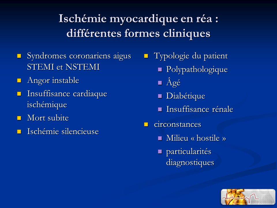 Ischémie myocardique en réa : différentes formes cliniques