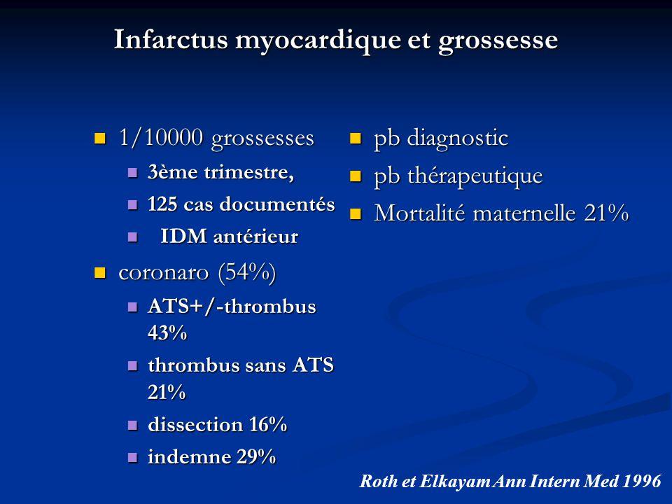 Infarctus myocardique et grossesse