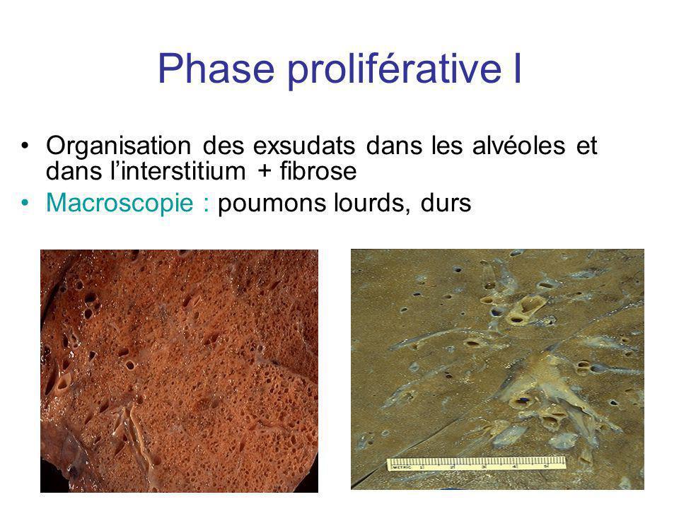 Phase proliférative I Organisation des exsudats dans les alvéoles et dans l'interstitium + fibrose.