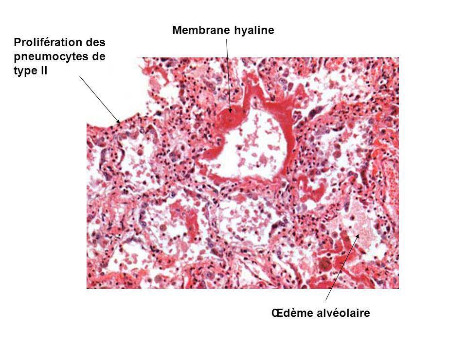 Membrane hyaline Prolifération des pneumocytes de type II Œdème alvéolaire