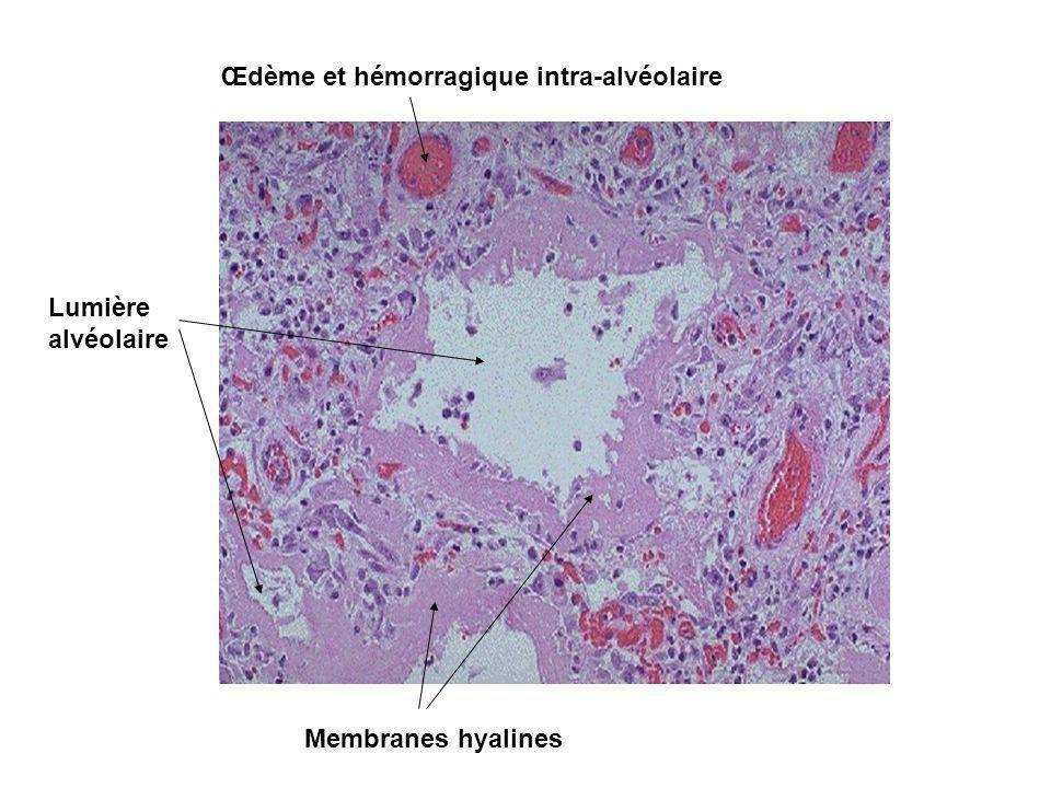 Œdème et hémorragique intra-alvéolaire