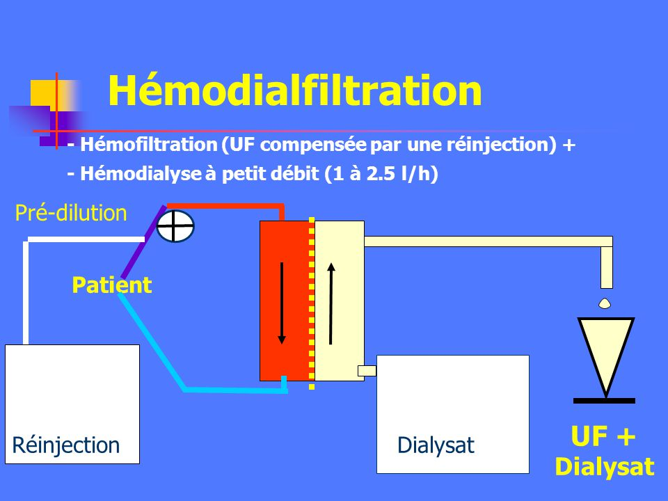 Hémodialfiltration UF + Dialysat Pré-dilution Patient Réinjection