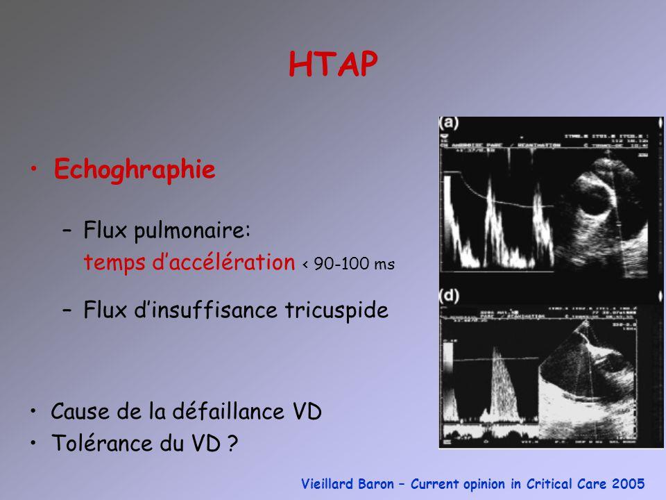 HTAP Echoghraphie Flux pulmonaire: temps d'accélération < 90-100 ms