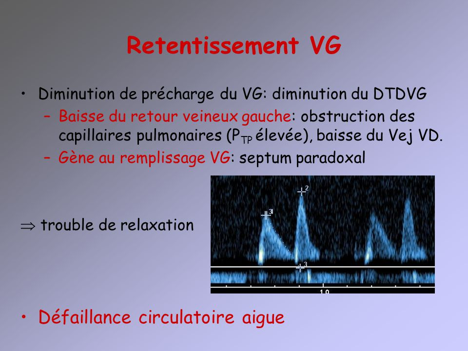 Retentissement VG Défaillance circulatoire aigue