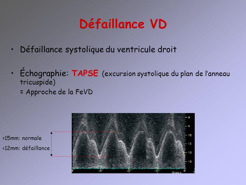 Défaillance VD Défaillance systolique du ventricule droit