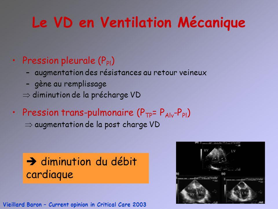 Le VD en Ventilation Mécanique