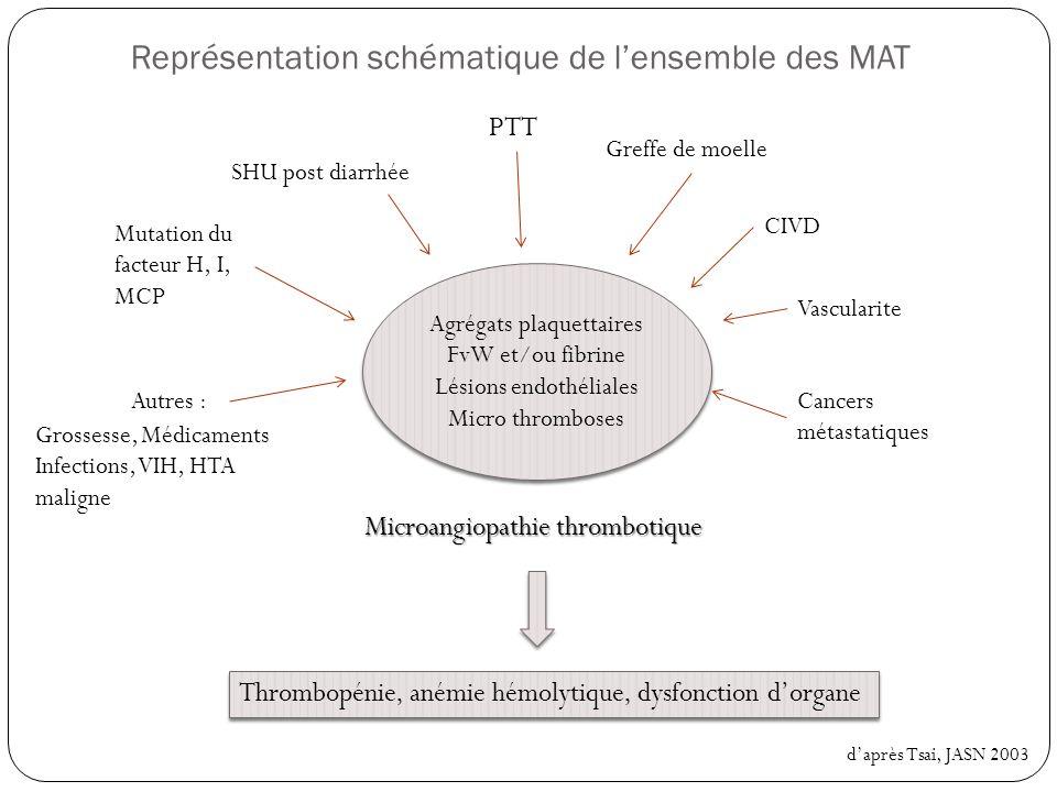 Représentation schématique de l'ensemble des MAT