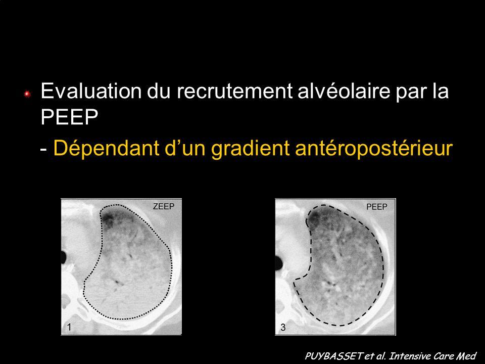 Evaluation du recrutement alvéolaire par la PEEP