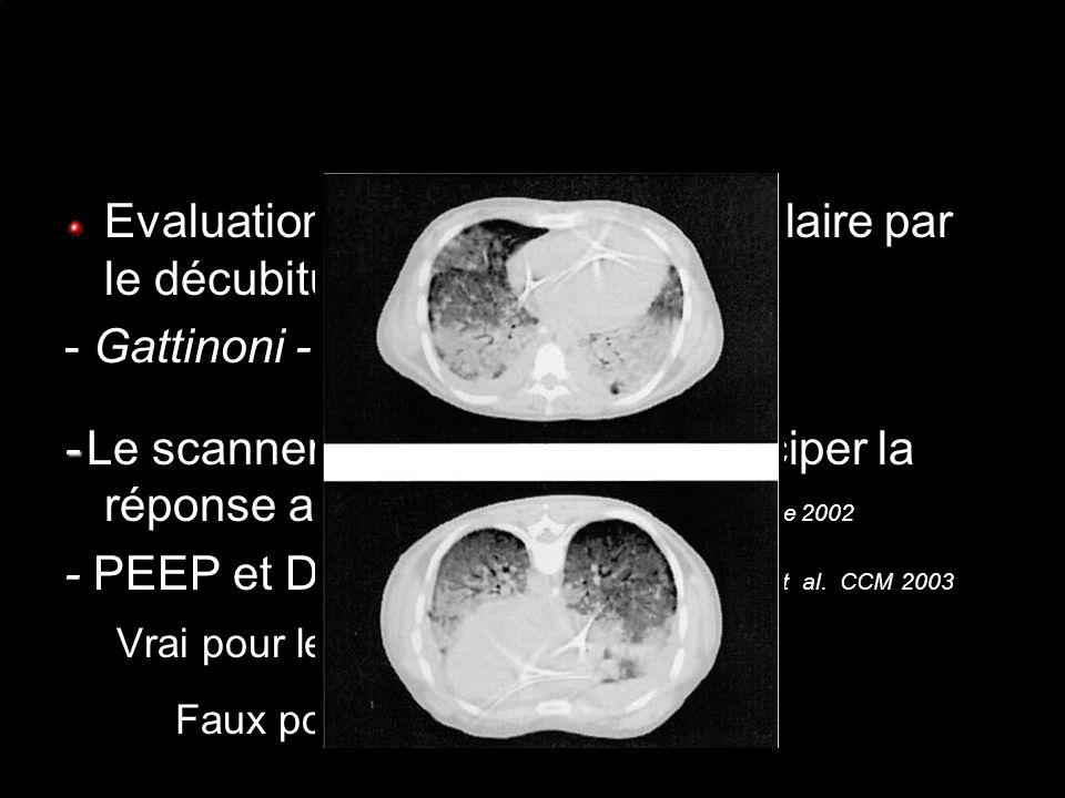 Evaluation du recrutement alvéolaire par le décubitus ventral