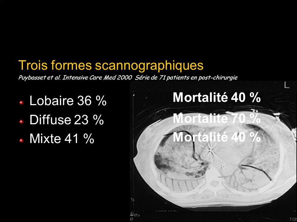 Trois formes scannographiques Lobaire 36 % Diffuse 23 % Mixte 41 %