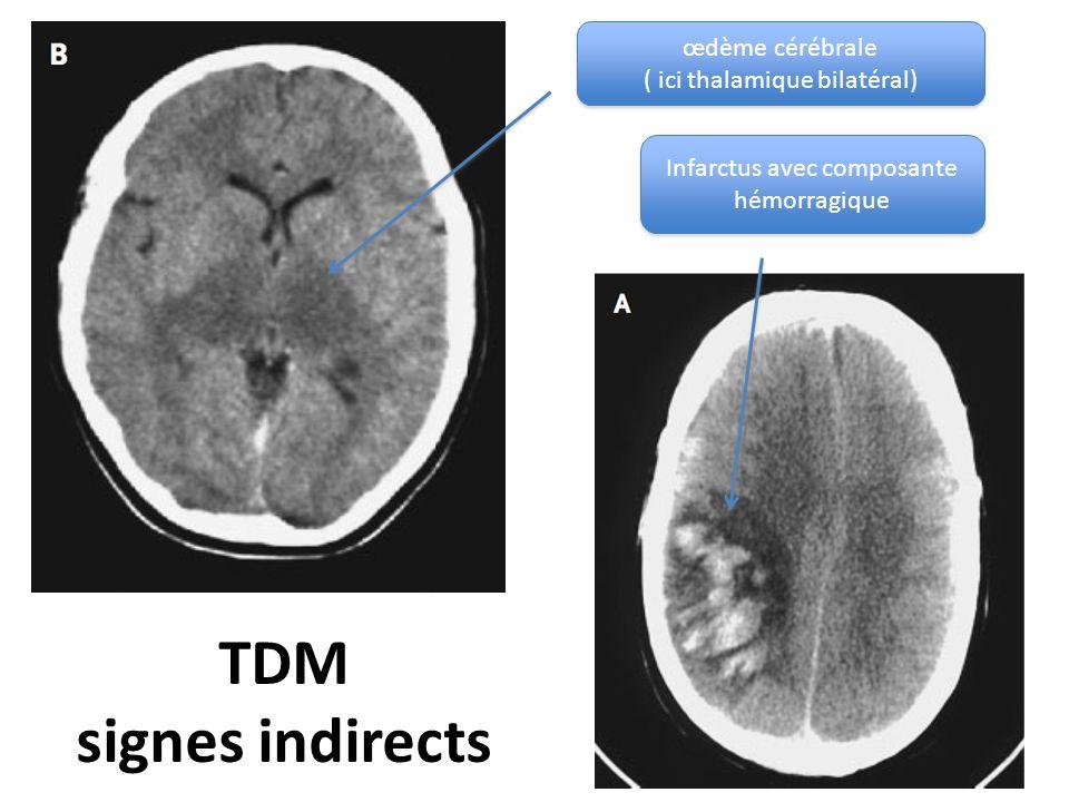 TDM signes indirects œdème cérébrale ( ici thalamique bilatéral)