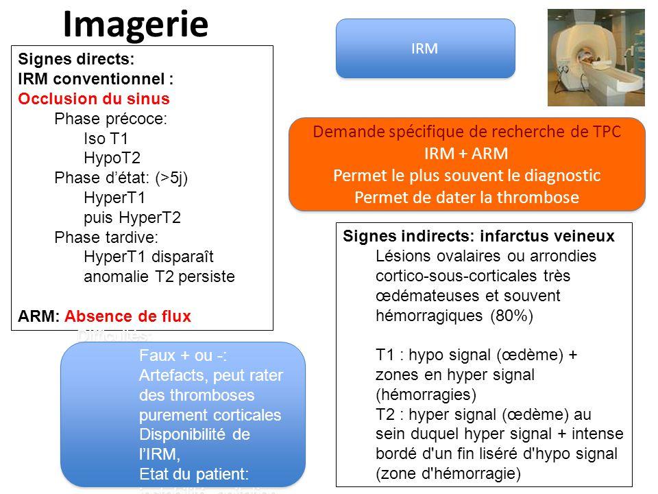 Imagerie Demande spécifique de recherche de TPC IRM + ARM