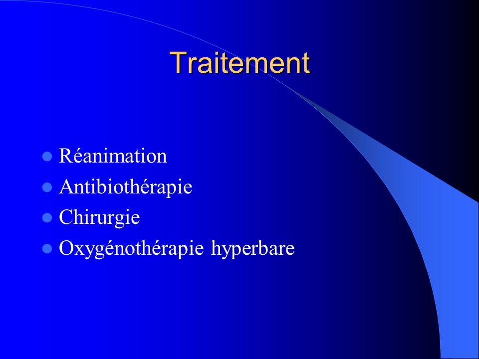 Traitement Réanimation Antibiothérapie Chirurgie
