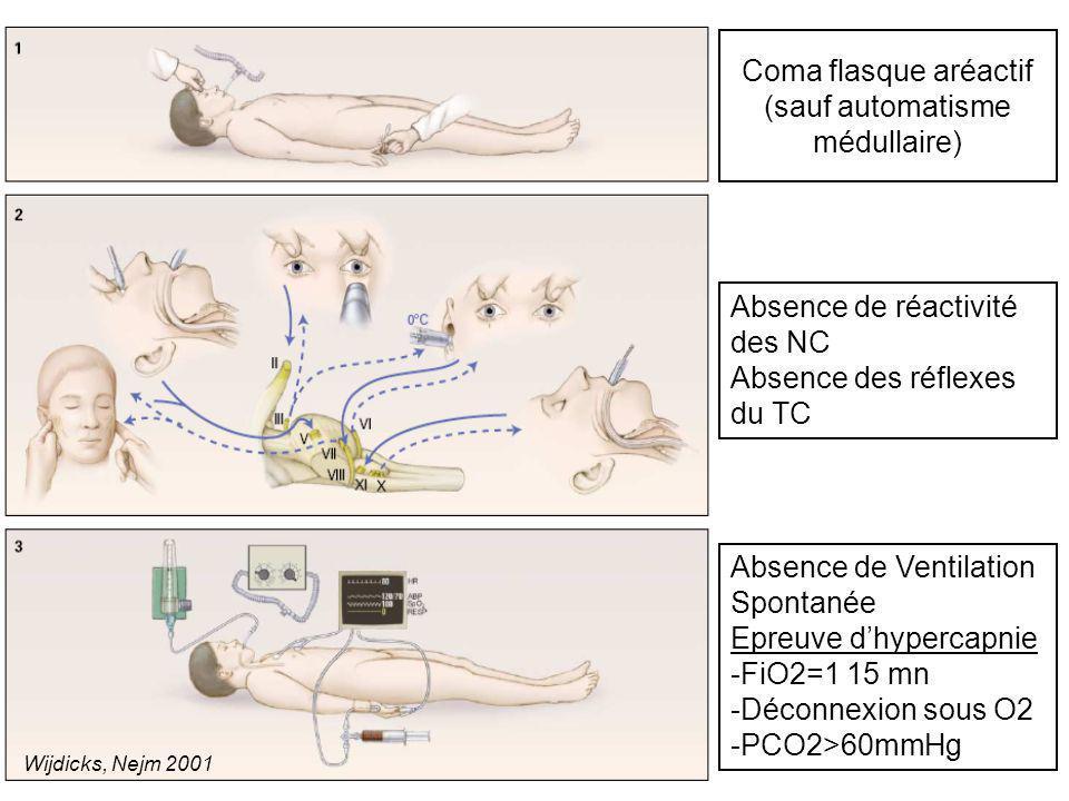Coma flasque aréactif (sauf automatisme médullaire)