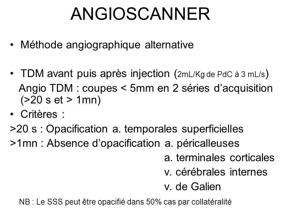 ANGIOSCANNER Méthode angiographique alternative