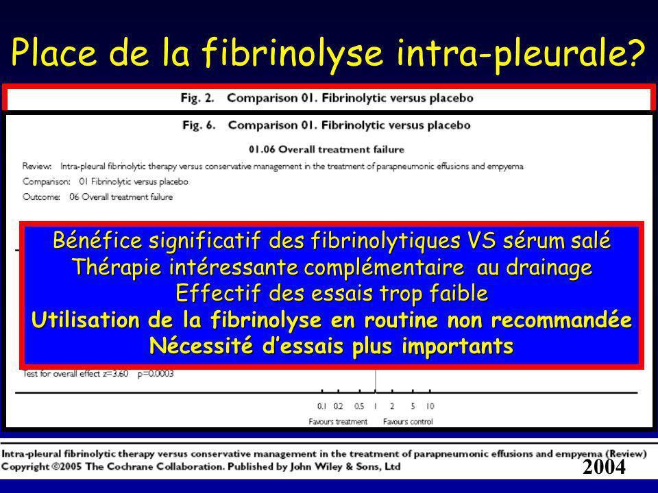 Place de la fibrinolyse intra-pleurale