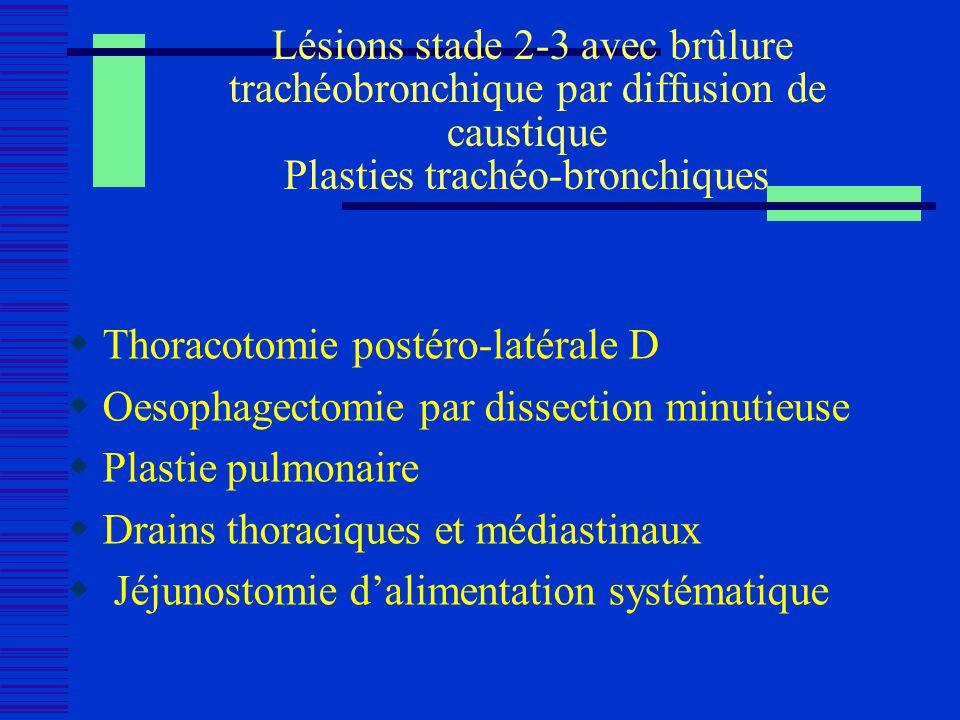 Lésions stade 2-3 avec brûlure trachéobronchique par diffusion de caustique Plasties trachéo-bronchiques
