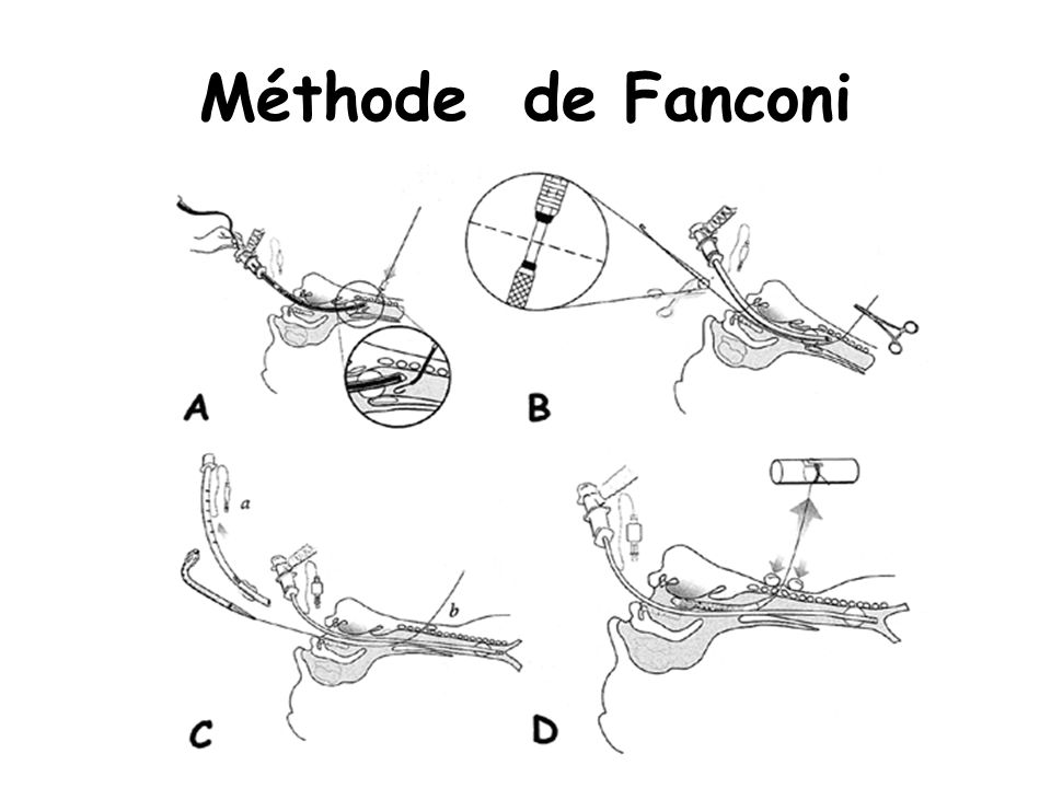 Méthode de Fanconi