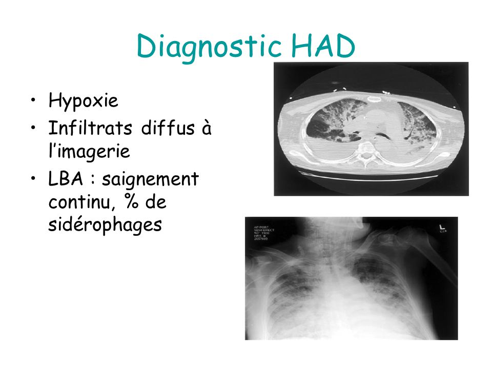 Diagnostic HAD Hypoxie Infiltrats diffus à l'imagerie
