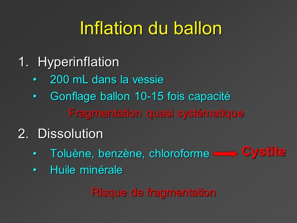 Inflation du ballon Hyperinflation Dissolution Cystite