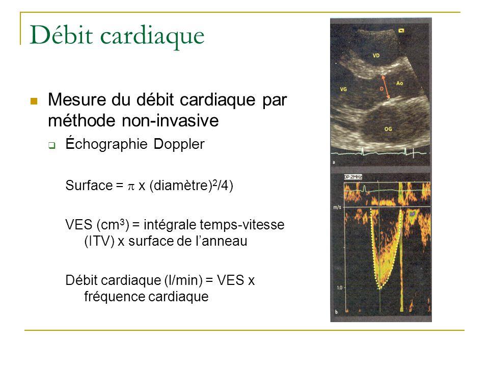 Débit cardiaque Mesure du débit cardiaque par méthode non-invasive