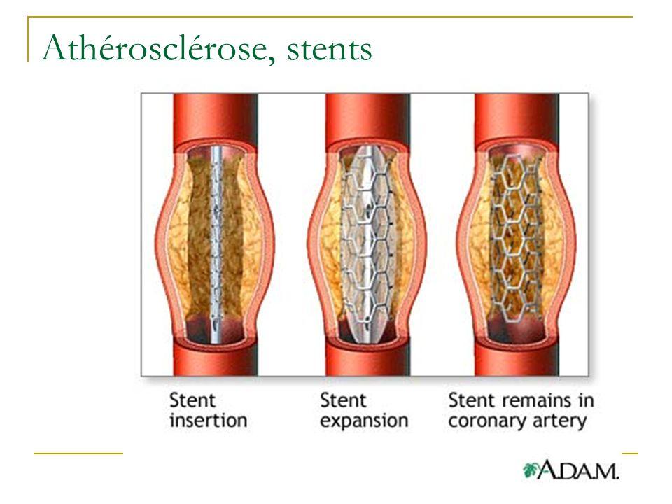 Athérosclérose, stents