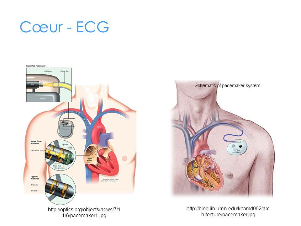 Cœur - ECG http://blog.lib.umn.edu/khamd002/architecture/pacemaker.jpg