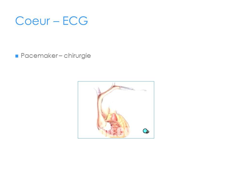 Coeur – ECG Pacemaker – chirurgie