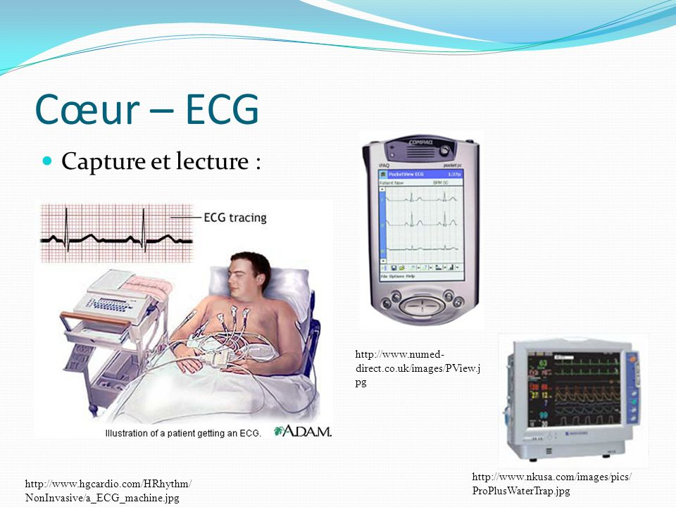 Cœur – ECG Capture et lecture :