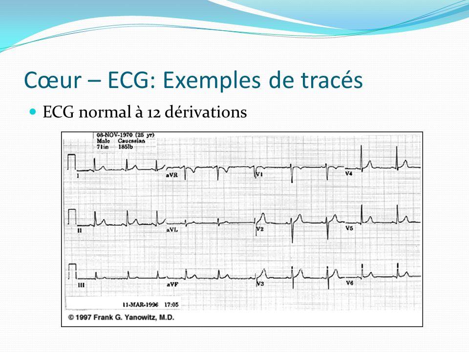 Cœur – ECG: Exemples de tracés