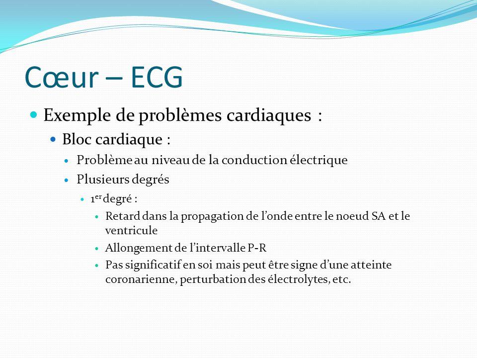 Cœur – ECG Exemple de problèmes cardiaques : Bloc cardiaque :