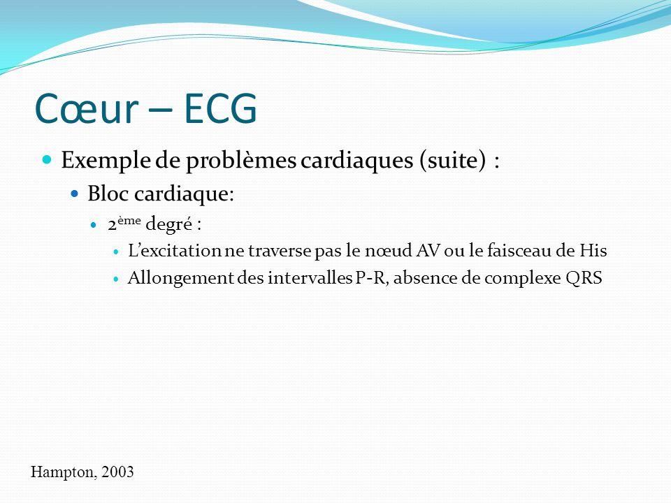 Cœur – ECG Exemple de problèmes cardiaques (suite) : Bloc cardiaque: