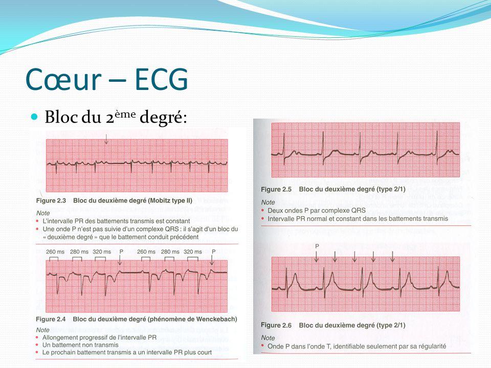 Cœur – ECG Bloc du 2ème degré: