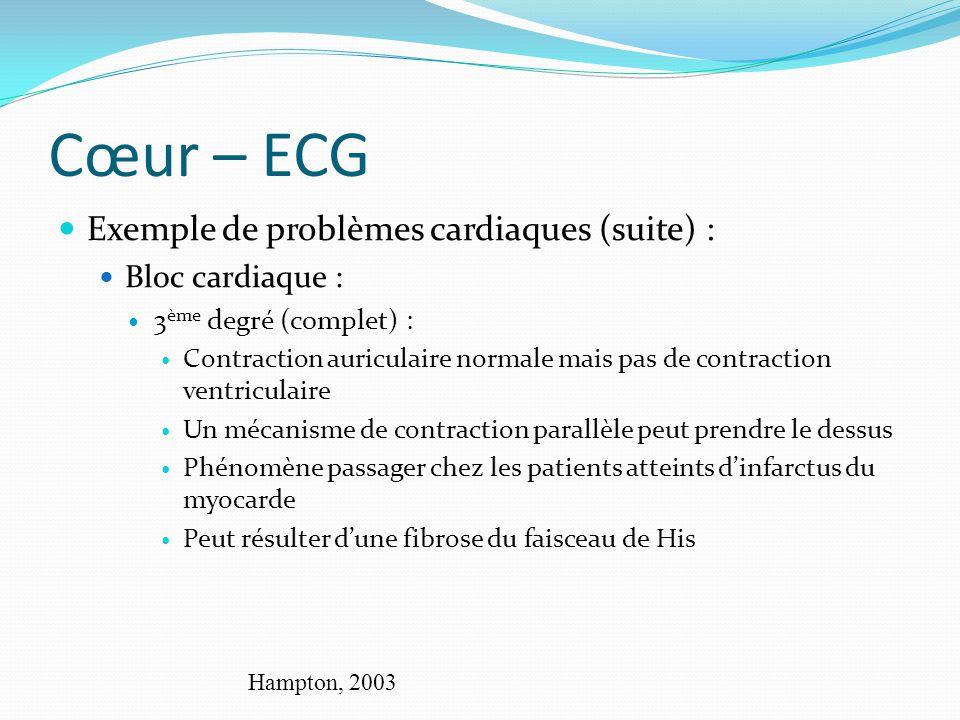 Cœur – ECG Exemple de problèmes cardiaques (suite) : Bloc cardiaque :