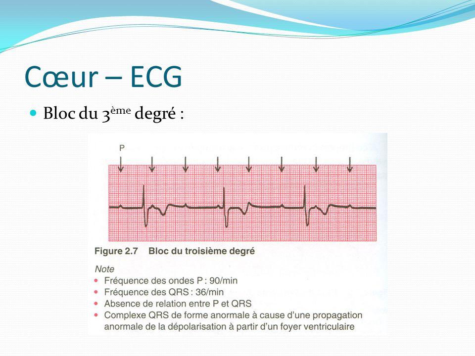 Cœur – ECG Bloc du 3ème degré :