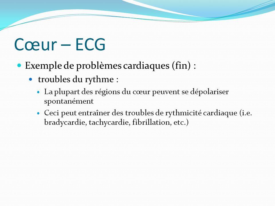 Cœur – ECG Exemple de problèmes cardiaques (fin) :
